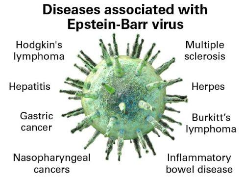 ویروس اپشتین بار (EBV)