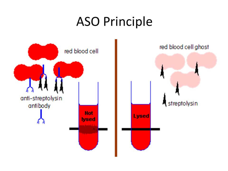 آنتی ژن ASO