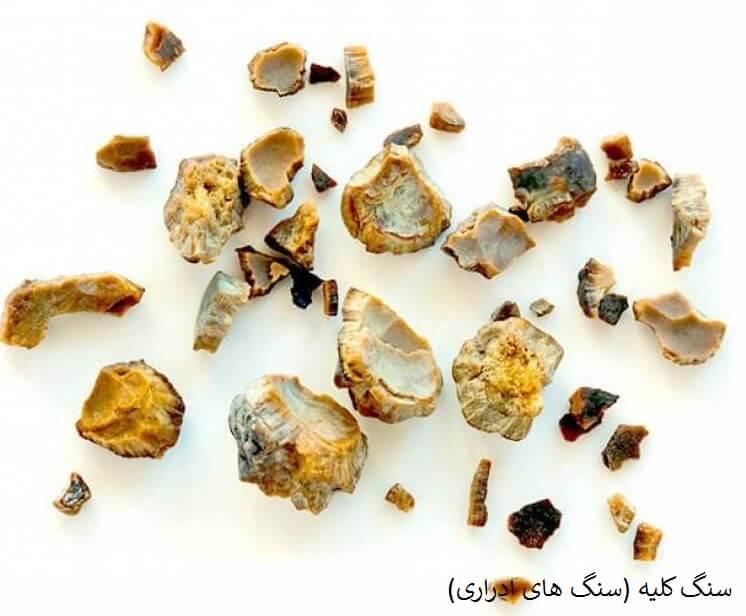 تجزیه سنگ های ادراری