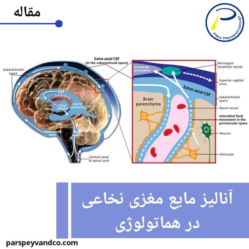 آنالیز مایع مغزی نخاعی در هماتولوژی