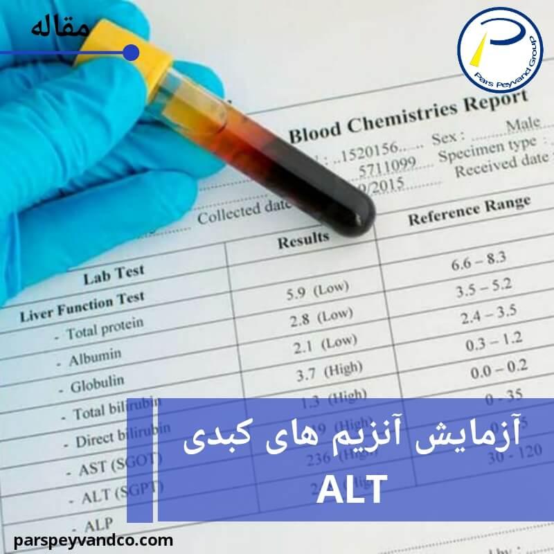 آزمایش ALT