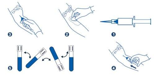 آموزش استفاده از لوله خون گیری 2