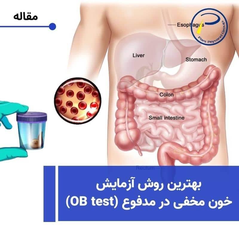 آزمایش خون مخفی در مدفوع -FOBT